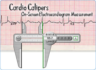 On-screen accurate electrocardiogram (EKG, ECG) measurement.
